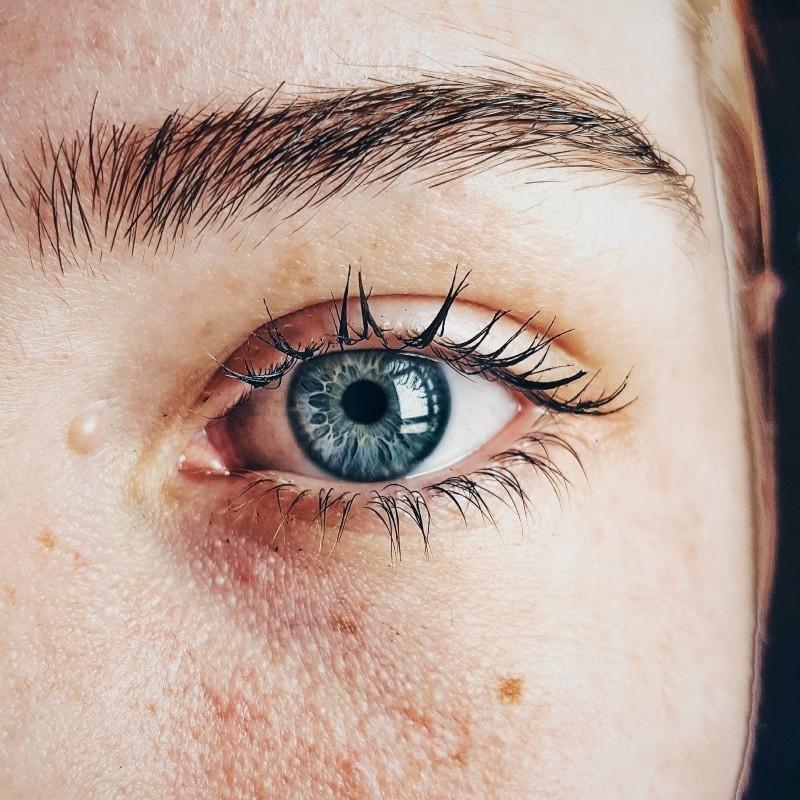 φαγούρα στα μάτια